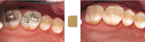 Zähne vor der Füllung und nach der Füllung