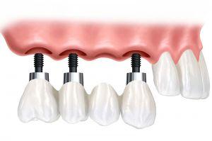 Implantat-Zahnersatz