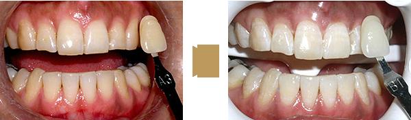Bleaching - Zähne links vor und rechts nach der Aufhellung