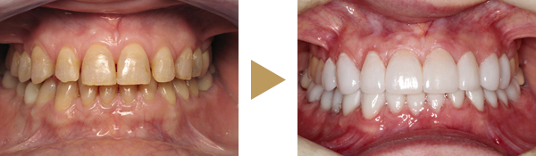 Zähne mit und ohne Keramikveneers