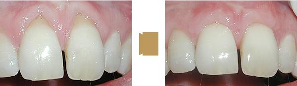 Zähne vor der Behandlung und nach der Behandlung mit Weichgewebe
